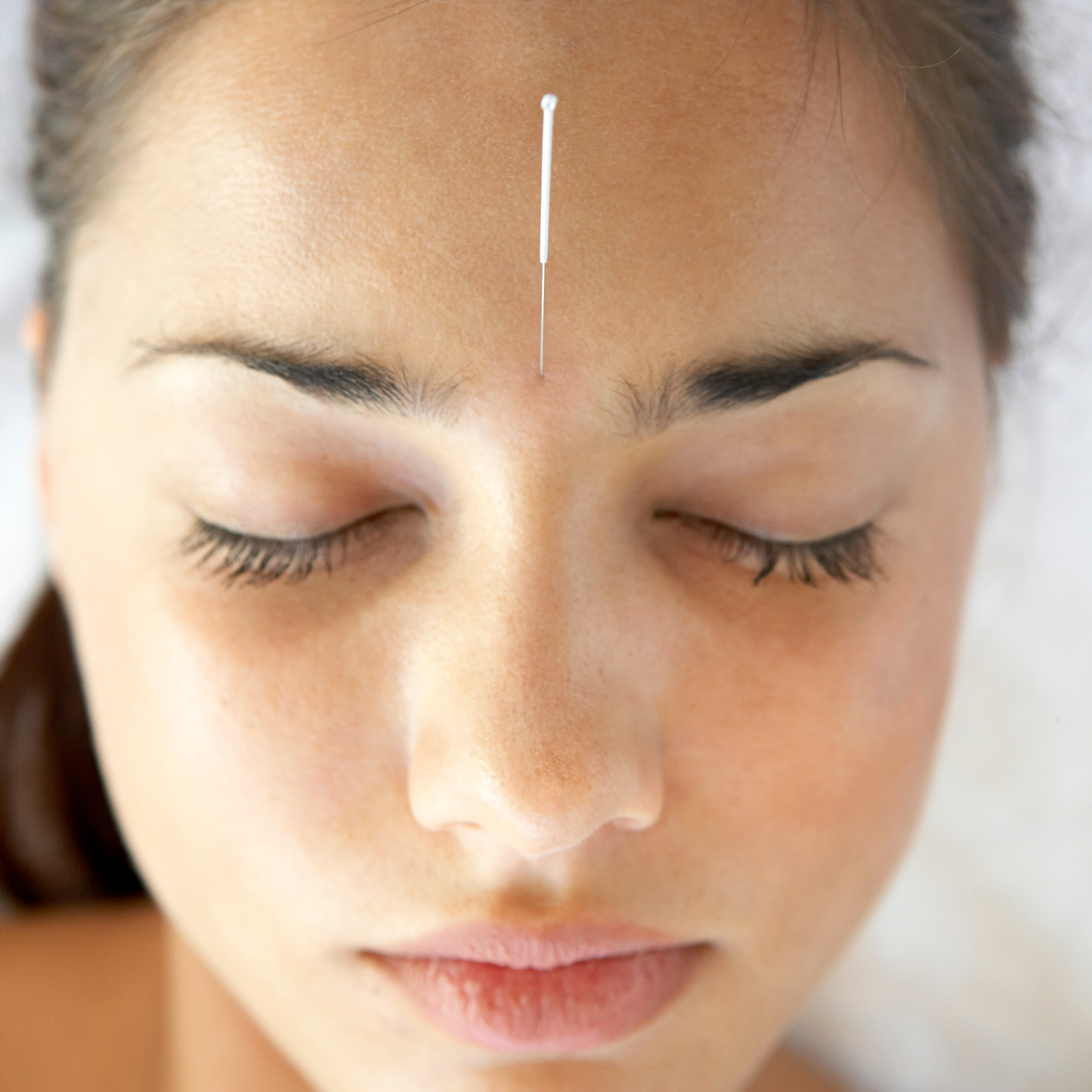Acupuncture for Pain Relief Medicine & Fire Cupping ...
